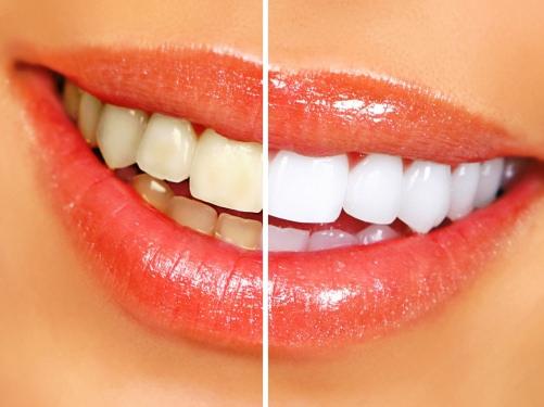 Túžiš po žiarivom úsmeve? Pomôže ti týchto 9 tipov!