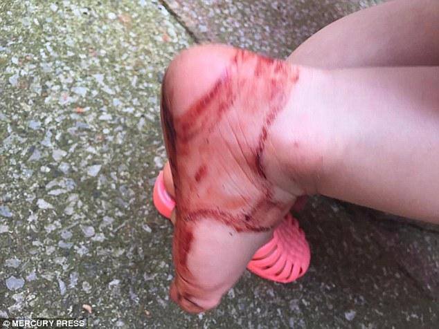 Dvojročná Esme skončila po chvíli v nových sandáloch s krvavými a dorezanými nohami