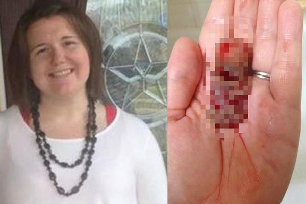 Žena porodila v 11. týždni tehotenstva! Fotku svojho bábätka zverejnila na internete, aby varovala všetky ženy