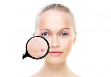 Prečo majú dospelí akné a ako sa ho účinne zbaviť?